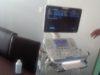 ultrazvuk_2